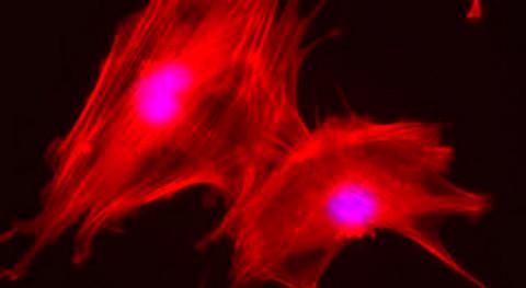Residuos manzana, materia prima biomateriales regeneración óseo-cartilaginosa